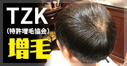 TZK増毛